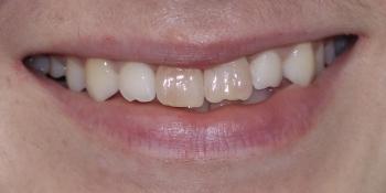 Установка двух керамических виниров на передние зубы фото до лечения