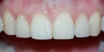 Виниры на передние зубы и реставрация резца фото после лечения