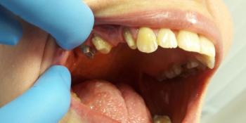 Мостовидный протез из металлокерамики на 3 зуба фото до лечения