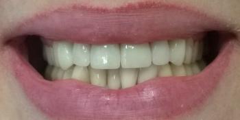 Протезирование передних зубов цельнокерамические коронки E-Max фото после лечения