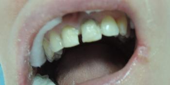 Реставрация 2 зубов светоотверждаемыми композитами фото до лечения