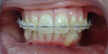 Исправление прикуса керамической брекет-системой фото после лечения