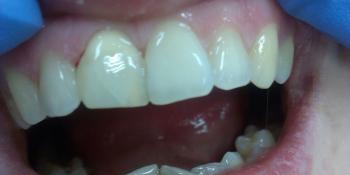 Внутриканальное отбеливание переднего зуба Opalescense Endo фото после лечения