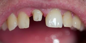 Замена ранее установленной коронки на переднем зубе фото до лечения