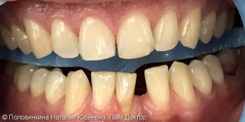 Коррекция формы зубов (резцов) с закрытием промежутка фото до лечения