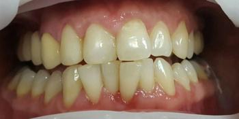 Лечение кариеса и реставрация двух передних зубов фото после лечения