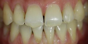 Исправление прикуса зубов на аппаратах съемного типа фото после лечения