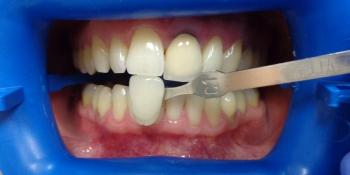 Отбеливание зубов лампой Zoom фото до лечения