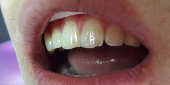Восстановление режущего края переднего зуба фото до лечения
