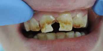 Виниры на 4 передних верхних зуба фото до лечения
