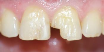Преображение передних зубов керамическими винирами фото до лечения