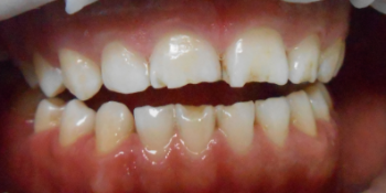 Реставрация керамическими винирами E-max (двух верхних и нижних зубов) фото до лечения