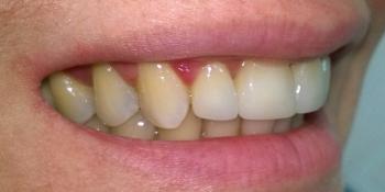 Цельнокерамические коронки e-max на передние зубы фото после лечения