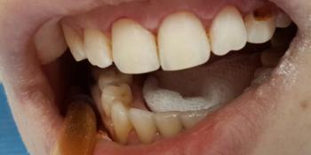 Лечение и художественная реставрация передних зубов фото после лечения