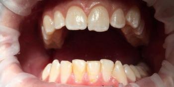 Профессиональная гигиена всей полости рта с последующей полировкой и реминерализацией фото до лечения