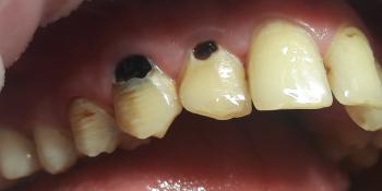 Реставрация фронтальных зубов, пораженных множественным кариесом фото до лечения