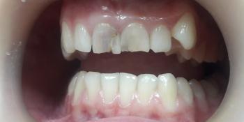 Художественная реставрация передних зубов композитным материалом фото до лечения
