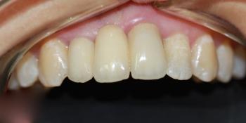 Изготовление и фиксация мостовидного протеза из диоксида- циркония фото после лечения