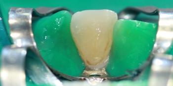 Лечение кариеса переднего зуба (центральный резец) фото после лечения