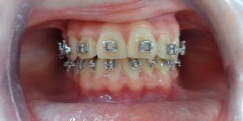 Исправление прикуса металлической брекет-системой фото после лечения