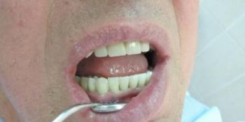 Имплантация зубов и последующее протезирование с применением диоксида циркония фото после лечения