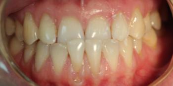 Исправление прикуса зубов на аппаратах съемного типа фото до лечения