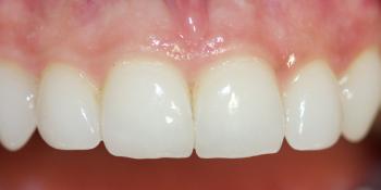 Керамические виниры без препарирования фото после лечения