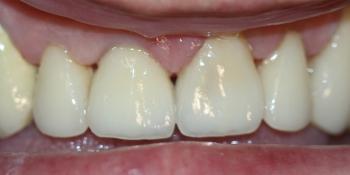 Безметалловая керамика E-max на передние зубы фото после лечения
