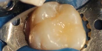 Лечение кариеса жевательного зуба материалом Харизма, Германия фото после лечения