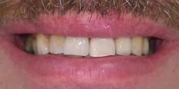 Жалоба на эстетический недостаток центрального резца фото после лечения