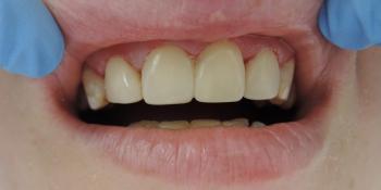 Виниры на 4 передних верхних зуба фото после лечения