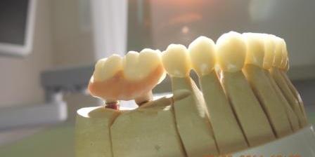 Данный материал для изготовления коронок был выбран, потому что для пациента было важно, чтобы зубы выглядели максимально естественно. Протезы из диоксида циркония обладают светопропускающими характеристиками, идентичными природной эмали. Поэтому они смотрятся естественно при любом освещении. Кроме того, через коронку не просвечивает металлический каркас. По прочности им также нет равных. Сложный случай с имплантацией и протезированием