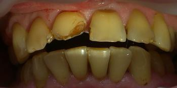 Художественная реставрация передних зубов фото до лечения
