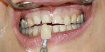 Керамические (безметалловые) виниры Е-МАХ на 6 передних зубов фото до лечения
