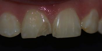 Ремонт скола центрального зуба верхней челюсти фото до лечения