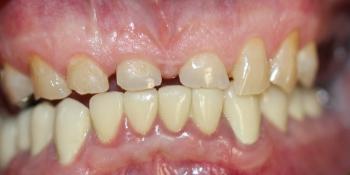 Восстановление всех зубов композитным материалом, изготовление и установка металлокерамических корон фото до лечения