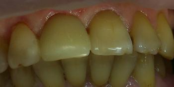 Художественная реставрация передних зубов фото после лечения