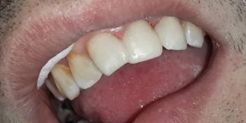 Результат восстановления передних зубов фото после лечения