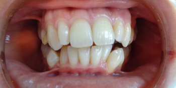 Исправление прикуса керамической брекет-системой фото до лечения