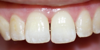 Устранение щели между зубами съемными аппаратами фото после лечения