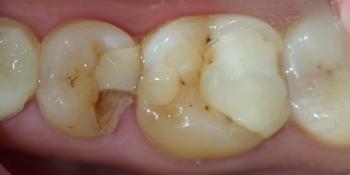Лечение среднего кариеса на жевательном зубе нижней челюсти фото до лечения