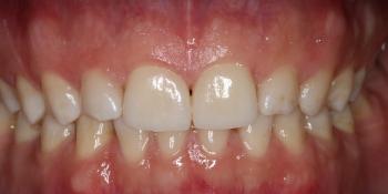 Реставрация керамическими винирами E-max (двух верхних и нижних зубов) фото после лечения