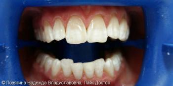 Отбеливание зубов Philips ZOOM 4 White Speed фото после лечения