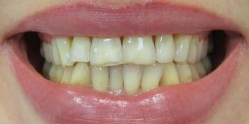 Керамические (безметалловые) коронки E-Max (6 верхних зубов) фото до лечения