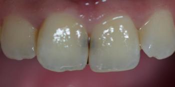 Лечение зубов и эстетическая реставрация, реакция на холод фото до лечения