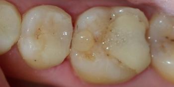Лечение среднего кариеса на жевательном зубе нижней челюсти фото после лечения