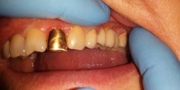 Мостовидный протез из металлокерамики, восстановление 2 зубов фото после лечения