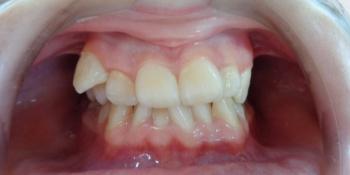 Исправление прикуса металлической брекет-системой фото до лечения
