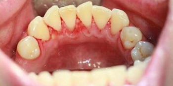 Профессиональная чистка зубов ультразвуком с Air-Flow фото после лечения