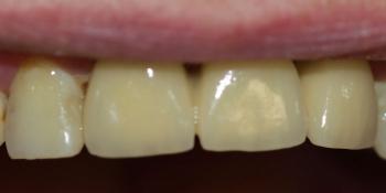 Мостовидный металлокерамический протез на передние зубы фото после лечения